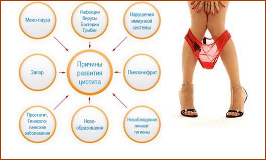 Цистит у женщины лечение в домашних условиях