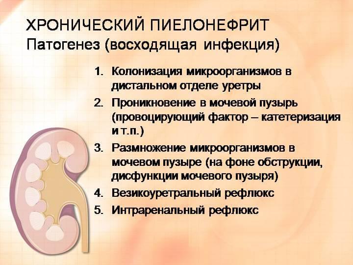 Как лечить обострение хронического пиелонефрита