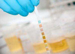 Определение наличия белка в моче