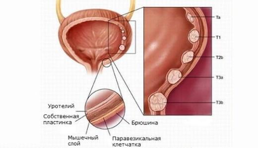 схема развития лейкоплакии