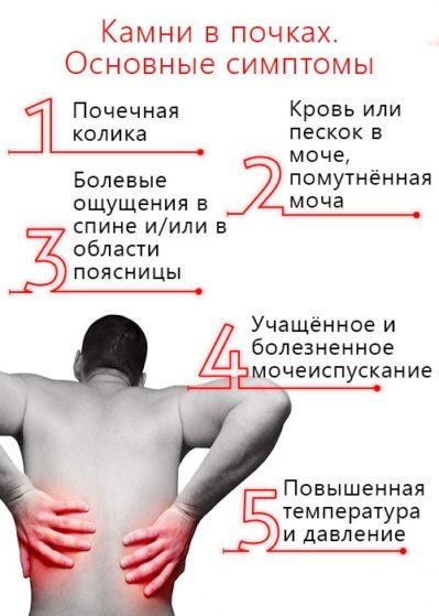 Симптомы камней в почках