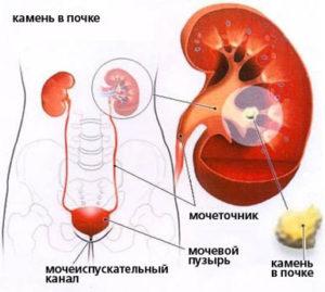 Развитие мочекаменной болезни