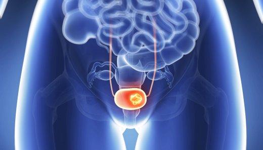 Патологии мочевого пузыря: признаки и симптомы, лечение, виды болезни у мужчин и женщин
