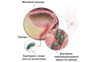 Мочевой пузырь женщины