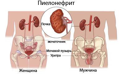 Развитие пиелонефрита у женщины и у мужчины