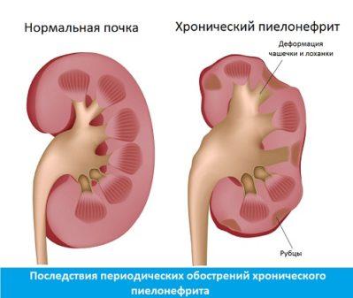 Последствия пиелонефрита