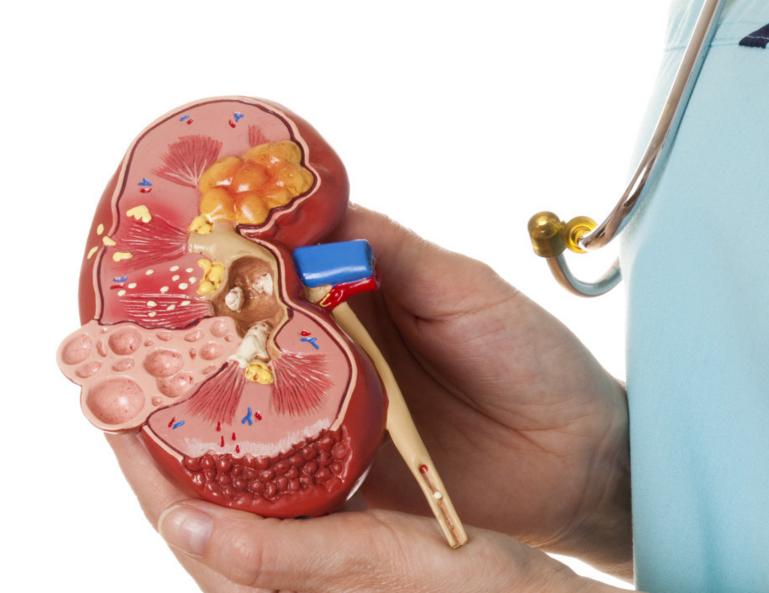 Повышение артериального давления при гломерулонефрите: препараты, проявления, рекомендации, у взрослых