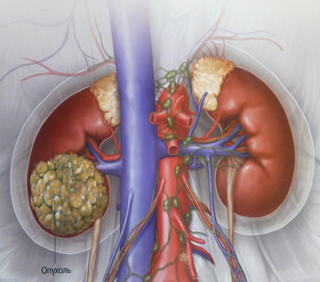 Признаки, симптомы, стадии и лечение рака почки