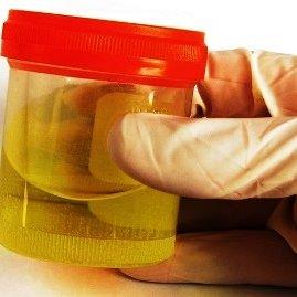 Причины изменения цвета мочи у мужчин на желтый или оранжевый. Моча темного цвета у мужчин после алкоголя: причины