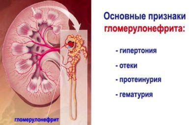 Основные признаки гломерулонефрита