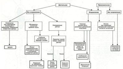 схема гипоспадии
