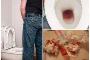 кровь в моче