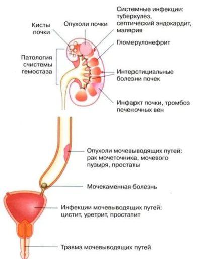 причины крови в моче