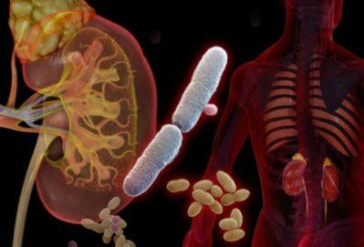 почки и инфекция