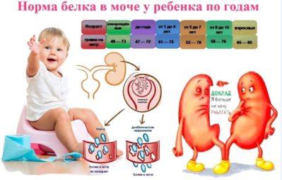 норма белка в моче у ребенка по годам