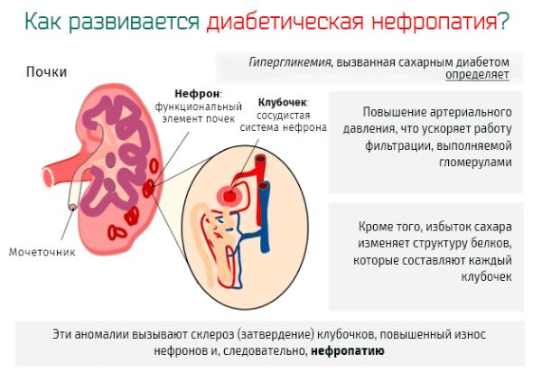 Нефропатия Википедия