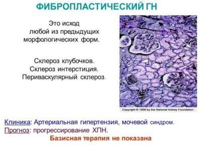 Фибропластический гломерулонефрит