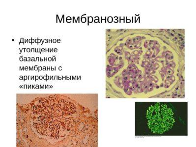 Мембранозный гломерулонефрит
