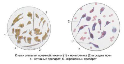 клетки эпителия