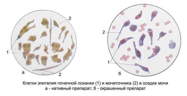 Эпителий плоский в моче у ребенка