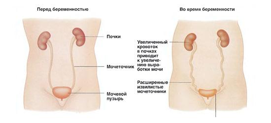 Рези в мочевом пузыре при беременности