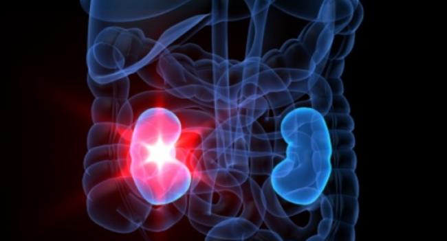 Нефросклероз хпн 1 2