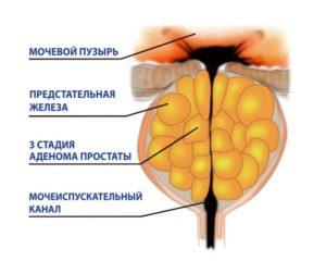 аденома