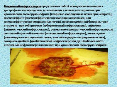 вторичный нефросклероз