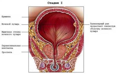 первая стадия рака