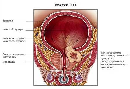 Рак мочевого пузыря у женщин симптомы