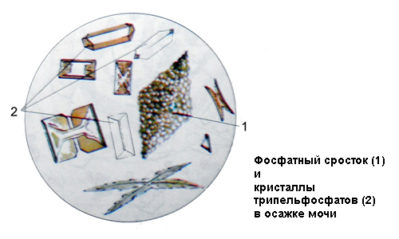 фосфаты в моче