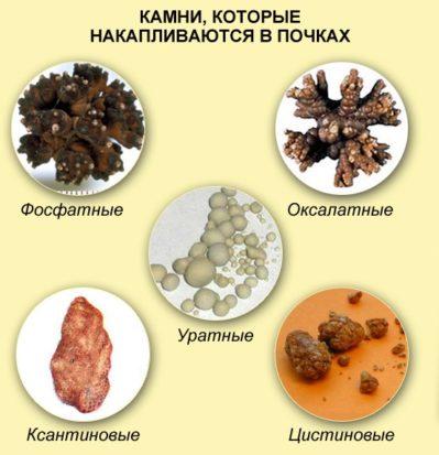 разновидности камней в почках