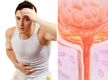 Лечение хронического цистита у мужчин по симптомам