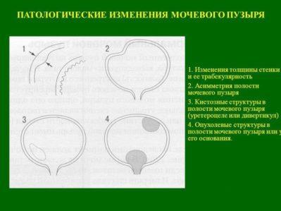 патологии мочевого пузыря