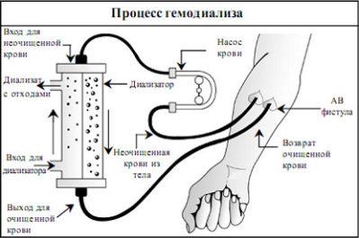 процесс гемодиализа