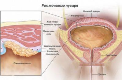 Развитие рака мочевого пузыря