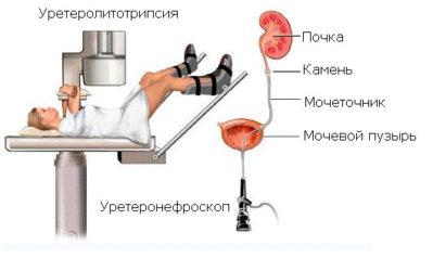 операция по дроблению камней