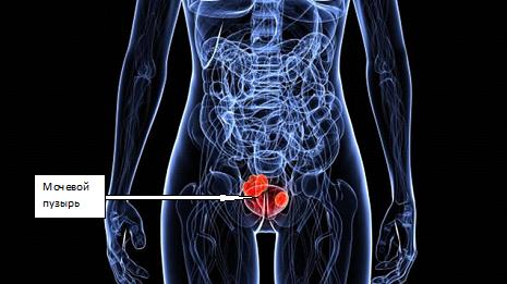Анализ мочи поможет предсказать рецидив рака мочевого пузыря