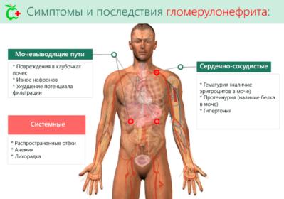 симптомы и последствия болезни