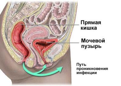 путь проникновения инфекции у женщины