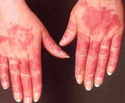 симптомы при люпус нефрите