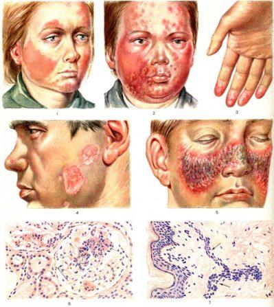 сиптомы волчаночного нефрита