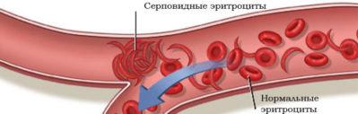 серповидная анемия