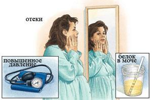 симптомы нефропатии