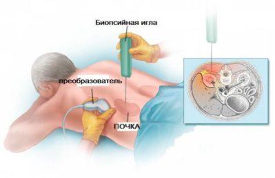 биопсия почек