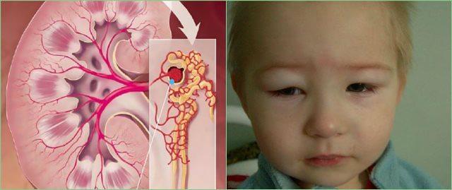гломерулонефрит у детей 4
