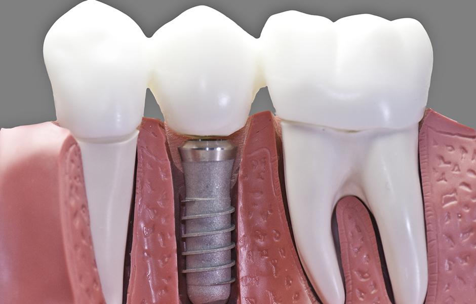 имплантация зубов под ключ 1