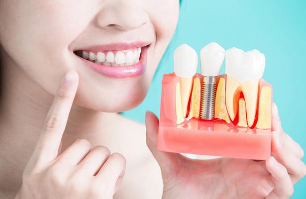 имплантация зубов под ключ 2
