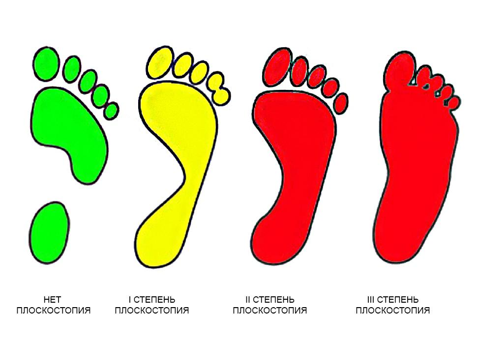 ортопедические стельки от плоскостопия 1