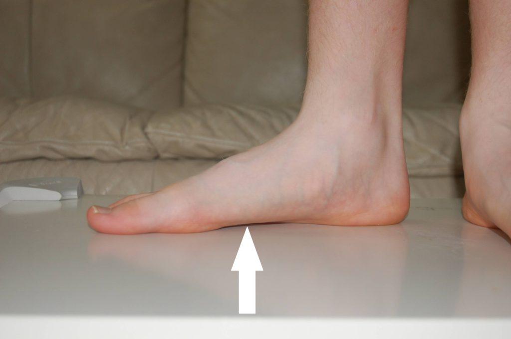 ортопедические стельки от плоскостопия 2